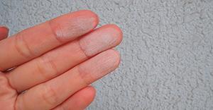 壁に触れると白い粉がつく